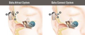 BAHA Bone conduction Implant