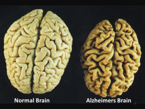 difference in the size of normal and Alzheimer brain