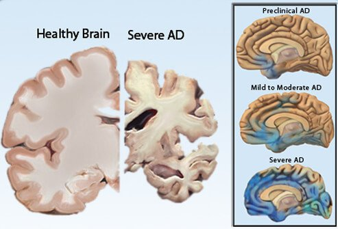 severe dementia causes brain shrinking