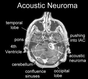 MRI acoustic neuroma