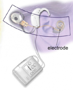 Electrode of the cochlear implant
