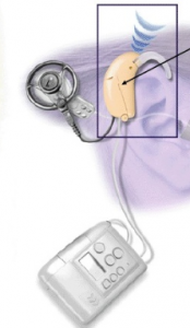 Microphone of the cochlear implant