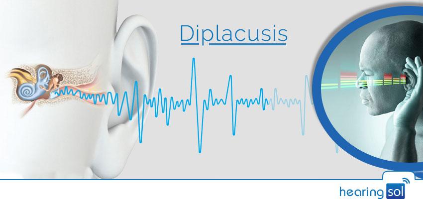 Diplacusis