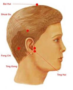 Acupuncture therapy for hearing loss