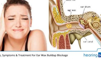 Causes, Symptoms & Treatment For Ear Wax Buildup Blockage
