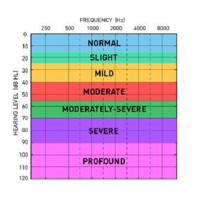 audiogram look like if one ear is better than the other and it's not masked during a hearing test
