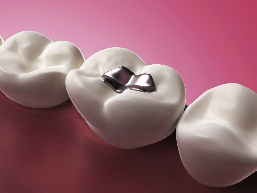 mercury-based dental filling dangerous for child
