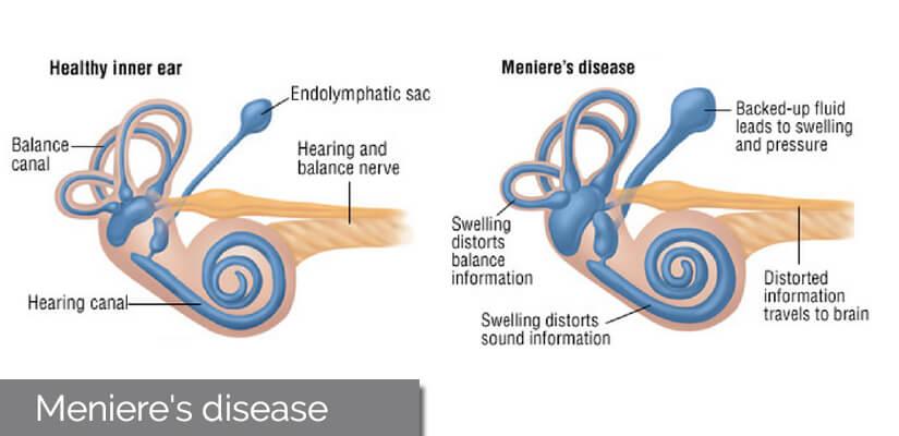 Vertigo May Be Menieres Disease
