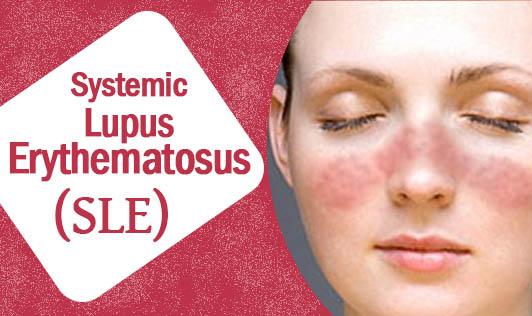 SLE Lupus