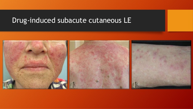 Drug-Induced Lupus