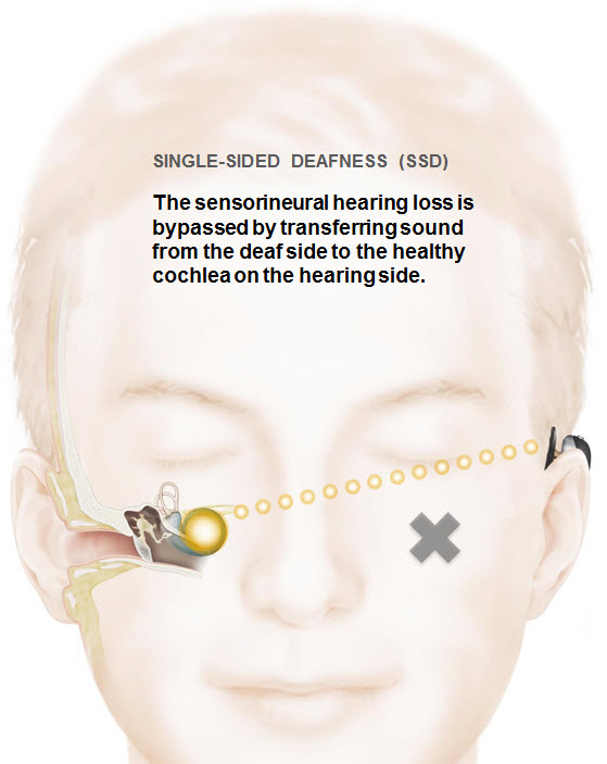 BAHA single sided deafness