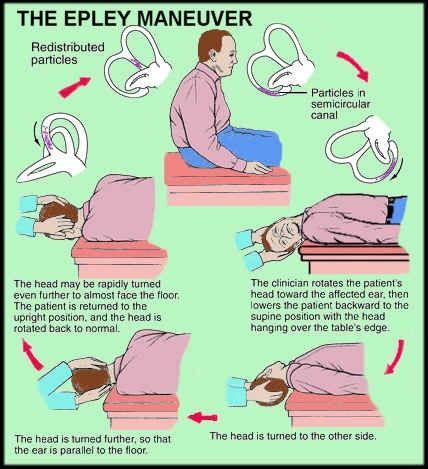 Epley Maneuver Exercise