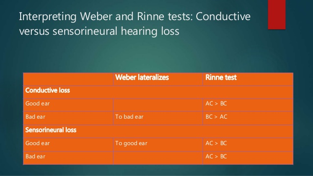 Rinne and weber tests