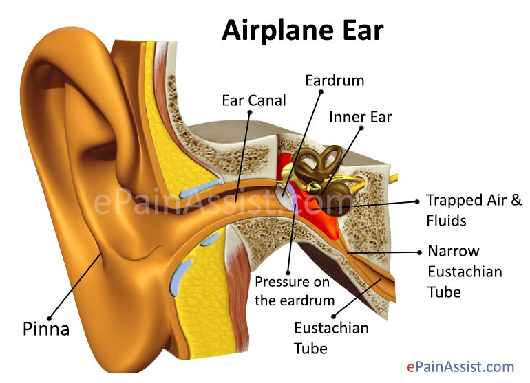 What Causes Ear Pain in Flight or Airplane Ear