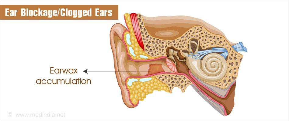 ear blockage