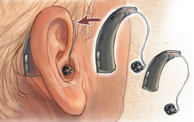 RIC hearing aids