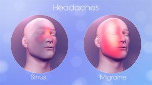 Sinus Vs Migraine