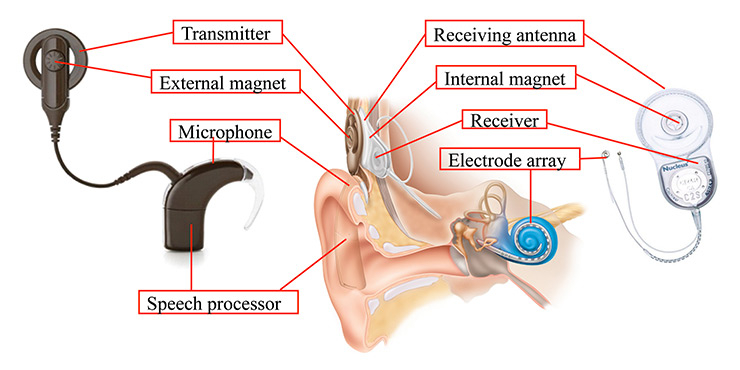 parts of cochlear implants