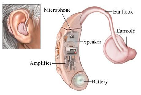 Parts of BTE hearing aids