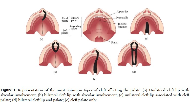 Cleft Lip and Cleft Palate Anatomy