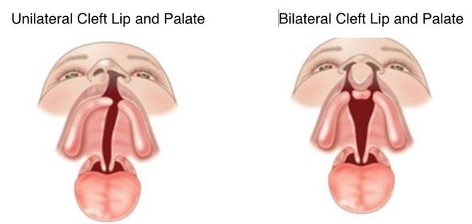 Unilateral and Bilateral Cleft Palate