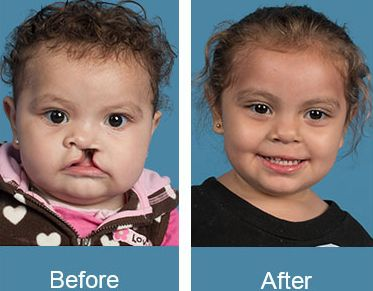 Before and After Cleft Palate Surgery