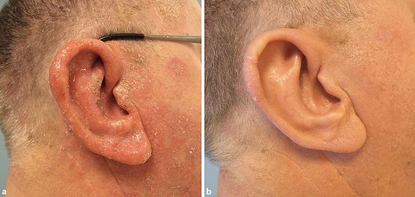 Ear Eczema