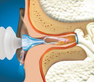 Ear flush