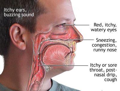 Allergic Rhinitis Symptoms