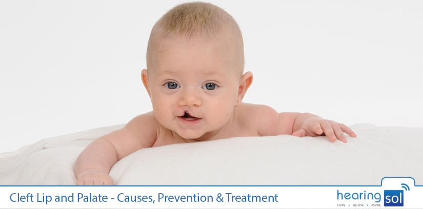 Cleft Lip and Palate - Causes, Prevention & Treatment