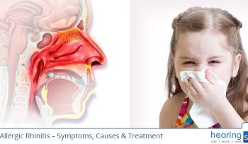 Allergic Rhinitis Symptoms, Causes, Treatment and Remedies