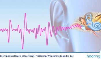 Pulsatile Tinnitus: Hearing Heartbeat, Fluttering, Whooshing Sound in Ear
