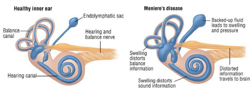 Meniere's diseased