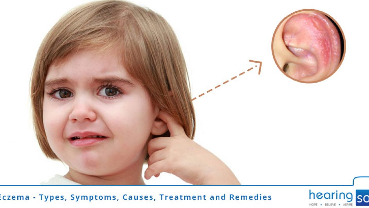 Ear Eczema - Types, Symptoms, Causes, Treatment and Remedies